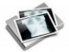 Új röntgengépet kap a XVI. kerület Kertvárosi Egészségügyi Szolgálat